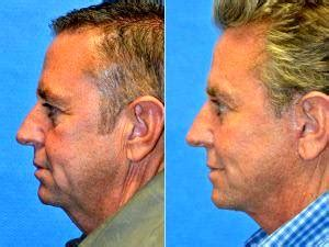 dr mats hagstrom how much does a facelift cost in san francisco 187 facelift