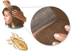 vaske i farbana kosa specijalisticka pedijatrijska ordinacija dr šarac