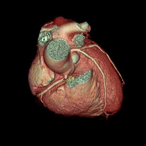 imagenes gif universitario angio tac coronario video tac cardio quir 243 n