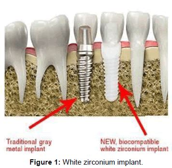 100 ceramic dental implants titanium to ceramic dental implants a communication