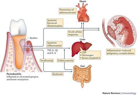 Periodontitis And Systemic Diseases A Literature Review biologically plausible mechanisms linking periodontitis to systemic inflammation and disease