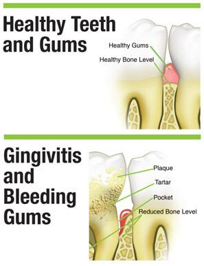 aleve side effects bleeding gums what causes bleeding gums gum disease gingivitis effects