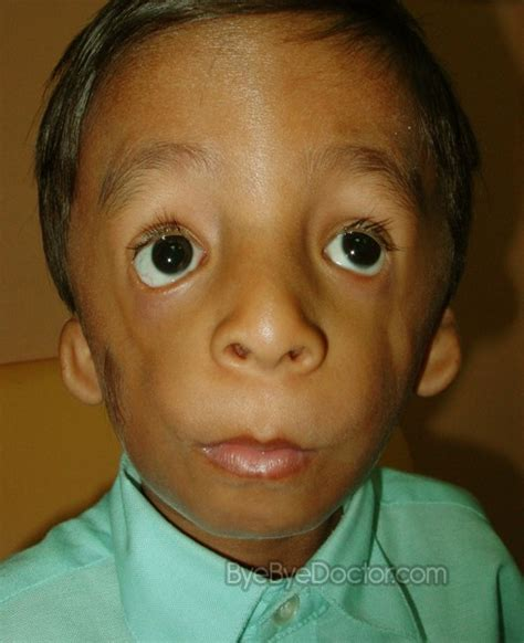 Jono Williams by Treacher Collins Syndrome Pictures Facts Symptoms