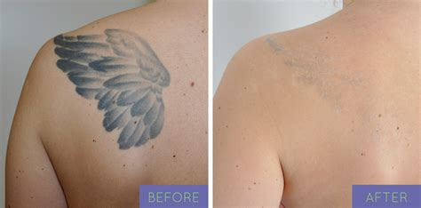 tattoo removal black skin before after laser removal in ny