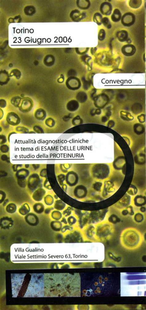 esame urine con sedimento 2006 l esame sedimento urinario tra artigianato ed