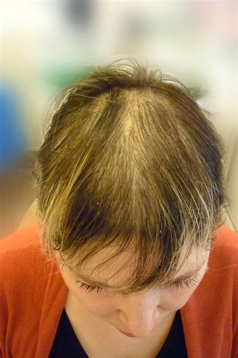 hairstyles for androgenectic alopecia my struggle with androgenic alopecia provided courtesy of