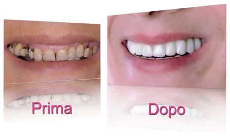 apparecchi dentali interni impianti dentali a 02 205 208 51