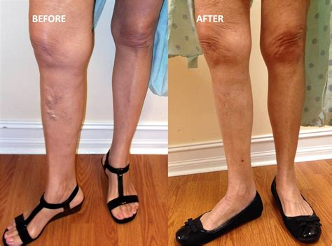 tattoo over varicose veins tattoo collections