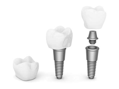 Prix Cabinet Dentaire by Implant Dentaire Tarif Trouver Un Implant Dentaire Au