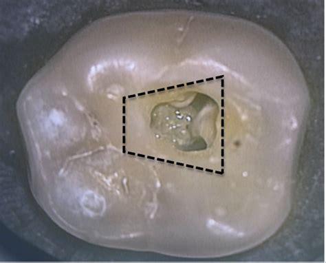 access forwarding conservative endo access conservative endodontic access