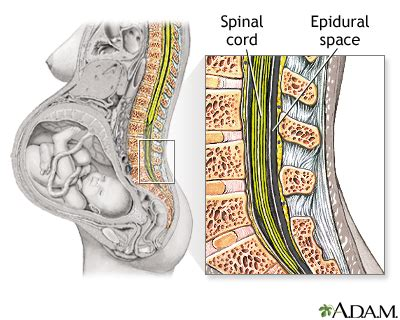 spinal or epidural for planned c section epidural series pregnancy health center health