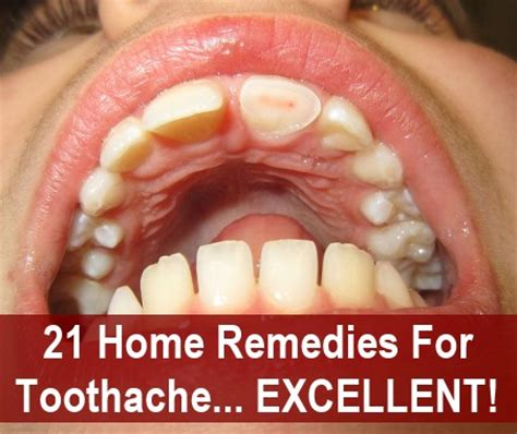 image gallery toothache remedies