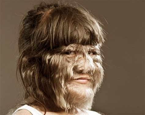 Hair Disease Types by Hypertrichosis Symptoms Causes Treatment Pictures