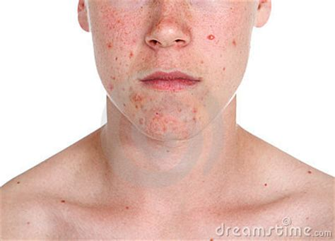 human skin with acne royalty free stock photos image 28330198 boy with acne royalty free stock photos image 17769488