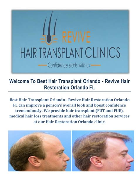 Hair Transplant Orlando Hair Restoration Orlando Best   hair restoration orlando fl om hair