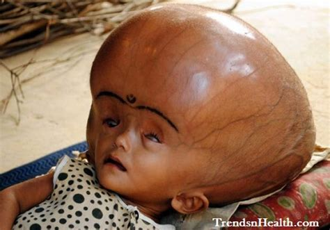born problems definition these babies were born with the most unusual disorder that