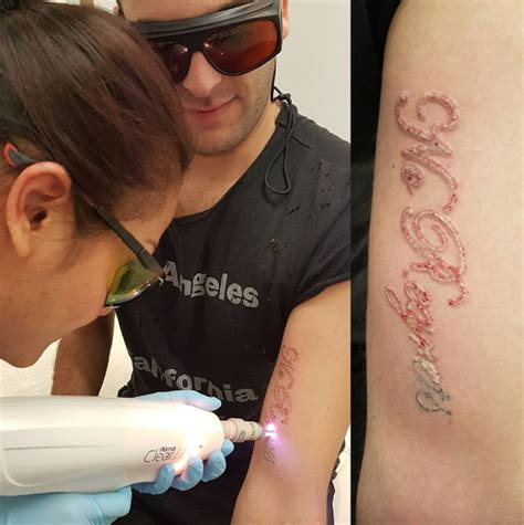 laser tattoo removal in north london blue light dental