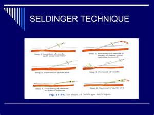 angiography basics and seldinger technique