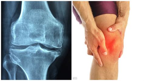 problemas con acuses de diot 2016 elimina el dolor de espaldas piernas y rodillas con esta
