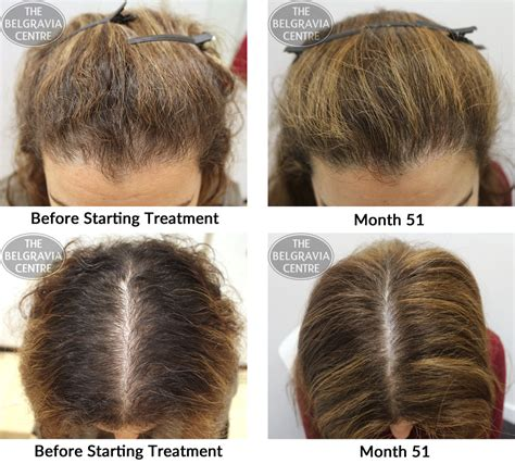 female pattern hair loss dutasteride female pattern hair loss success stories