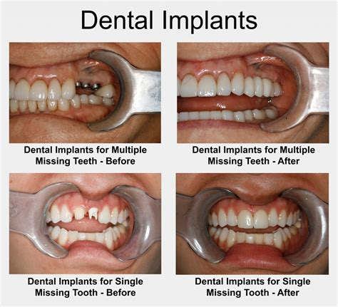 How Do You The Right Dentist 2 by Houston Implant Dentist Fix Missing Teeth W Dental Implants