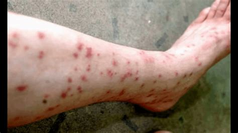 severe bed bug bites mosquito bites on humans www pixshark com images