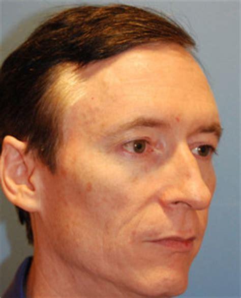 facial masculinization surgery transgender surgery
