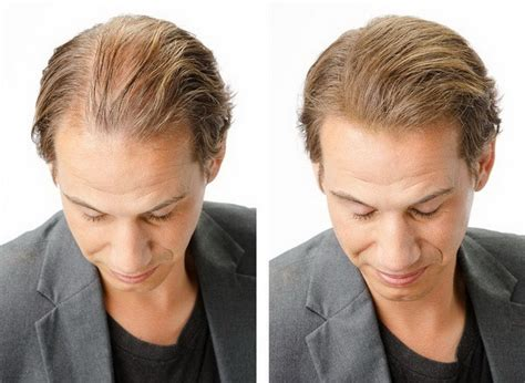 before and after thinning mens haircut toppik in port melbourne vic cosmetics beauty