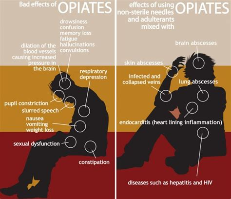 Opiod Rapid Detox Causes Parkinson S by Opium Abuse