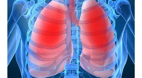 blogger lung lung cancer and its prevalence in china an editor q a