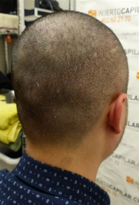 Kikiss Top my ht with dr lorenzo on oct 2014 forum by and for hair loss patients