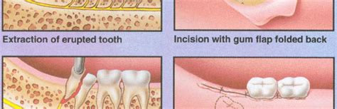 tooth extraction cost tooth extraction cost guard for teeth pic 18 images frompo