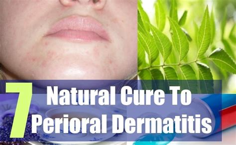 7 effective cure for perioral dermatitis cure