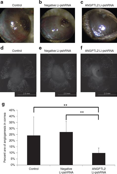 Rna Eye 2 5 Gr topical use of angiopoietin like protein 2 rnai loaded