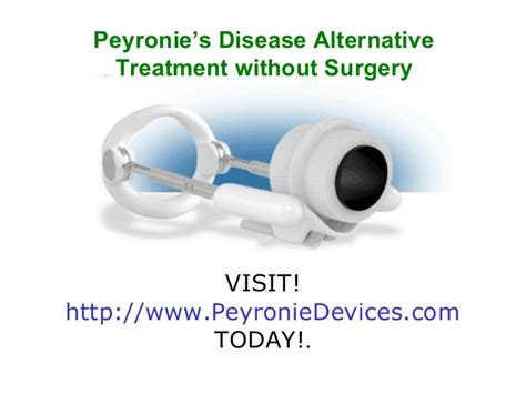 peyronie s disease alternative treatment without