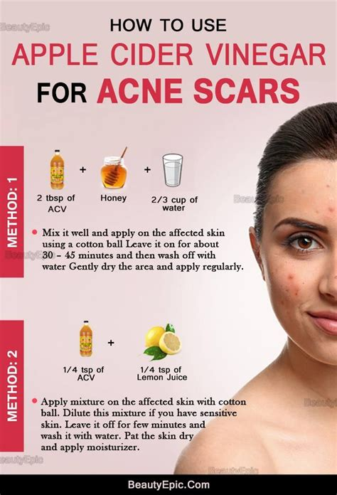 Apple Cider Vinegar Detox For Acne by How To Get Rid Of Acne Scars Quickly With Apple Cider