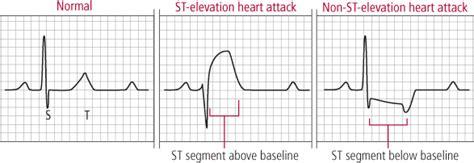 heart ecg pattern heart failure homeopathic treatment