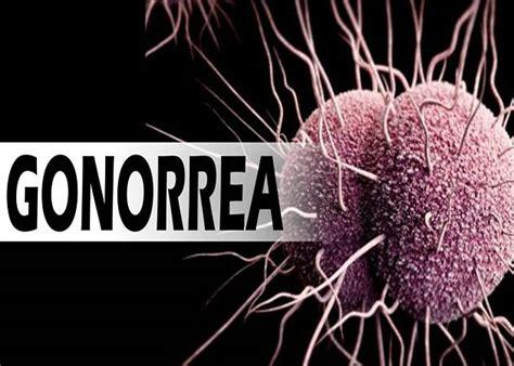 fotos de gonorrea imagenes de pacientes con gonorrea qu 233 es c 243 mo se transmite y cu 225 l es el tratamiento para la