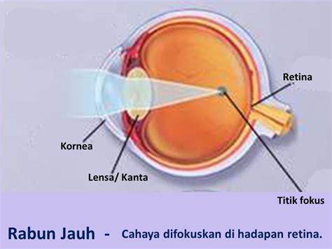 Cermin Mata Rabun Jauh jenis jenis rabun mata wannura terapi