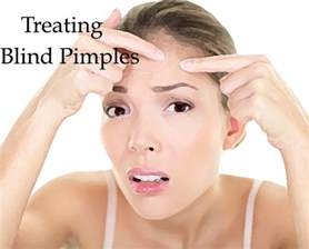 how to get rid of blind spots in your how to get rid of the skin pimples fashionisers