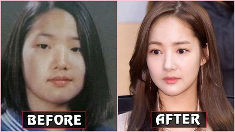 korean actress that did plastic surgery 15 korean celebrities admitted they had plastic surgery in