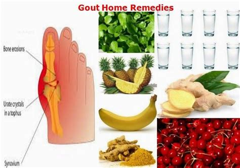 gout home remedies