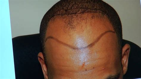 receding hairline african american black bald hair transplant fue result black man receding