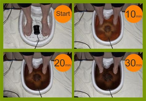 Naturopathy Foot Detox by Ionic Foot Spa Detoxification Carol Giles Naturopath