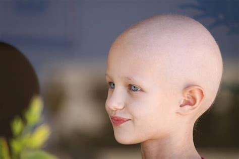 cancer chemotherapy and hair loss why it matters cancer drugs reach all time high the 100 billion disease