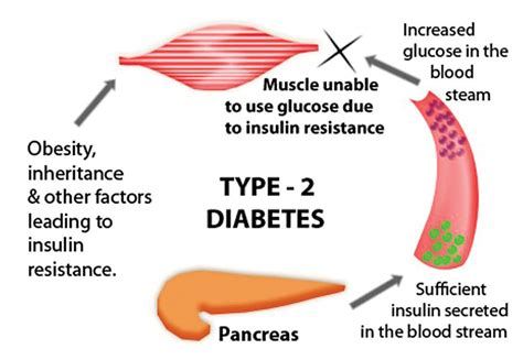diabetes diagram are you at risk your health matters health