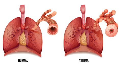 asthma attack top 6 benefits of cannabis for asthma sensi seeds