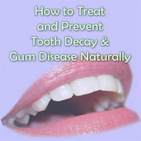 Gums Pulling Away From Teeth Home Remedy by 5 Important Ways To Prevent Tooth Decay And Gum Disease