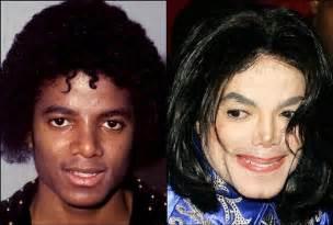 michael jackson vorher nachher michael jackson plastic surgery before after