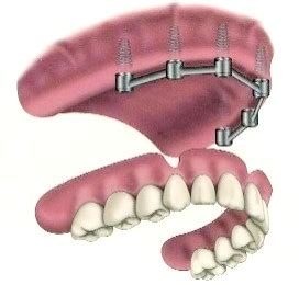 overdenture barra clip superior how many implants for a full upper denture medvacation
